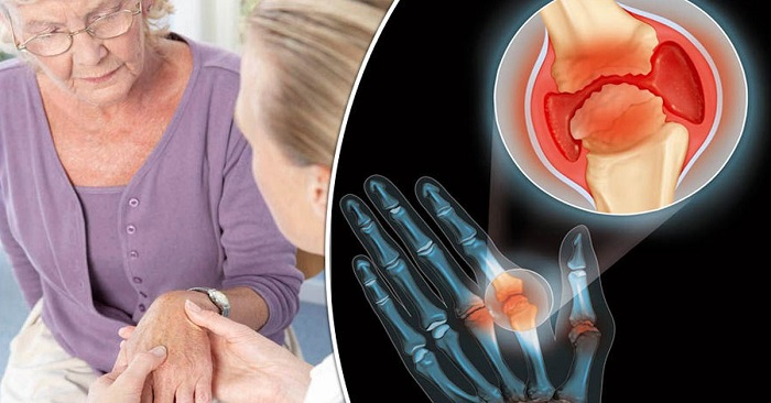 10 Home Treatment for Painful Arthritis Pain At Home In 10 Days